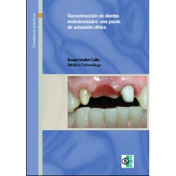 Reconstrucción dientes endodonciados - Ernest Mallat Callis